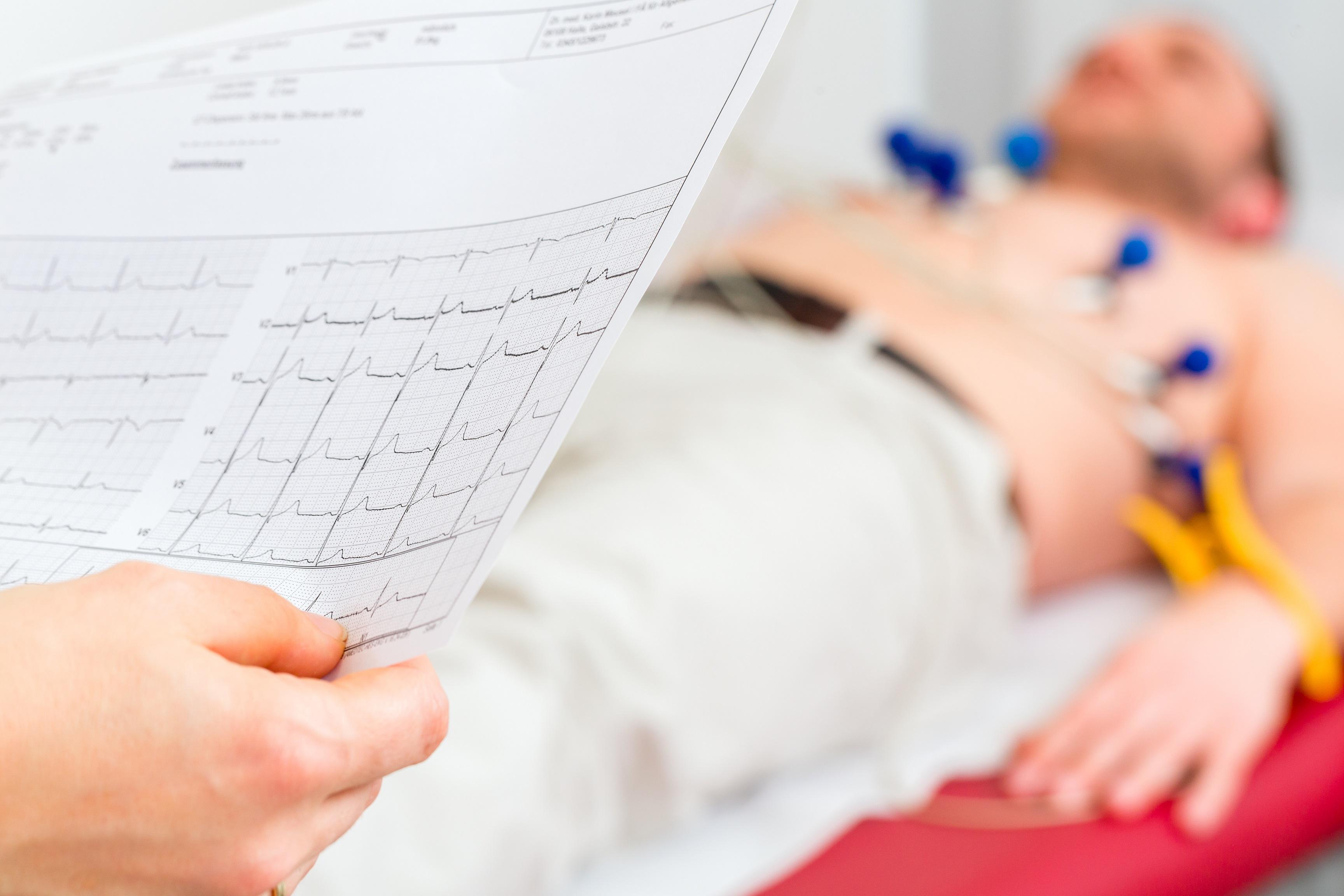 L'ECG a riposo e dinamico